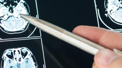 ESPECIALIZAÇÃO AVANÇADA PÓS-UNIVERSITÁRIA EM NEUROPSICOLOGIA CLÍNICA: do diagnóstico ao tratamento - 20ª Edição - Advanced Professional Program -